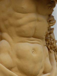 Was ist der Vorteil einer Liposuktion?